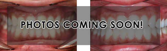dental-smile-gallery-coming-soon.jpg